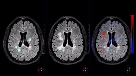 mr longitudinal brain imaging clinical image