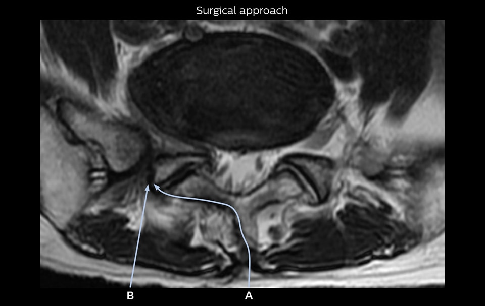 Nerveview surgical approach