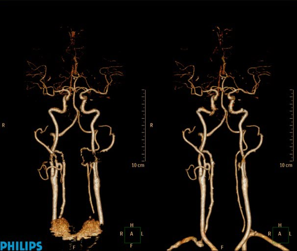 Head and Neck Angiogram