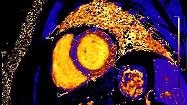 mr cardiac quantitave mapping